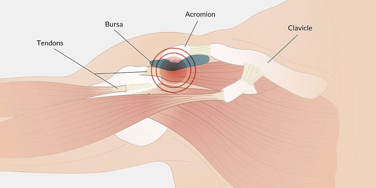 pinzamiento de hombro